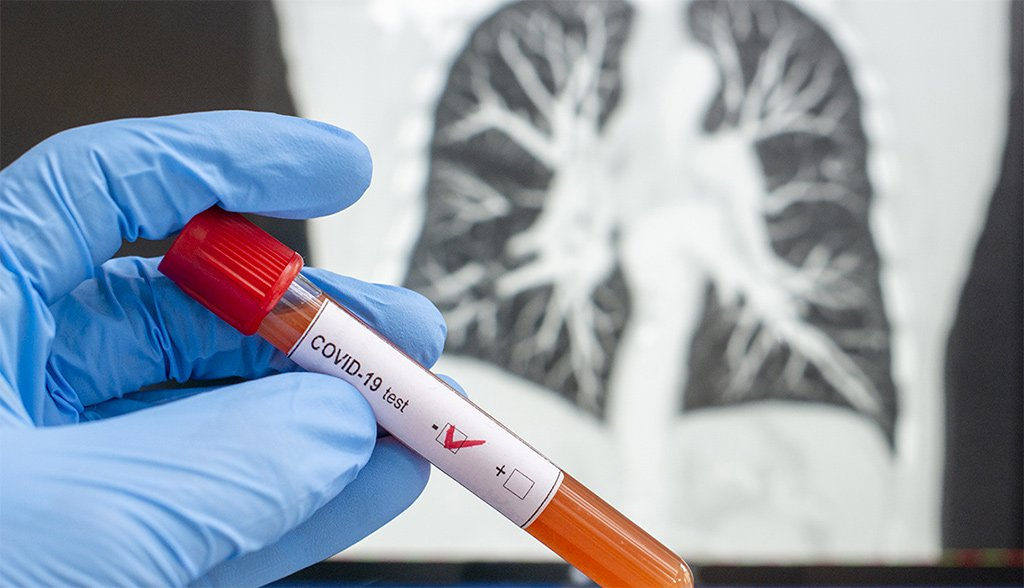 Канары: 28 дней без смертей от коронавируса и один позитивный случай
